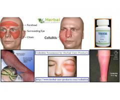 Cellulitis for Natural Treatment